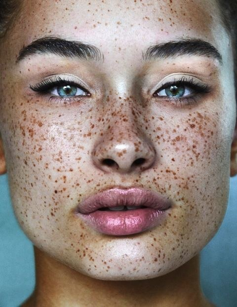 Communication on this topic: How to Cover Vitiligo Patches with Makeup, how-to-cover-vitiligo-patches-with-makeup/