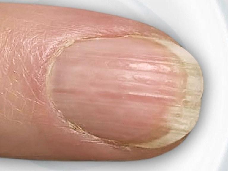 Fingernägel-Diagnose Bilder