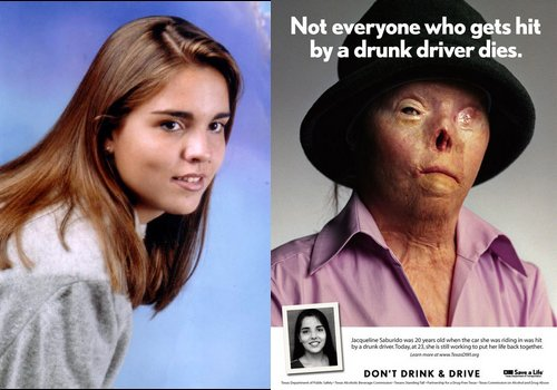 Image result for hit by a drunk driver