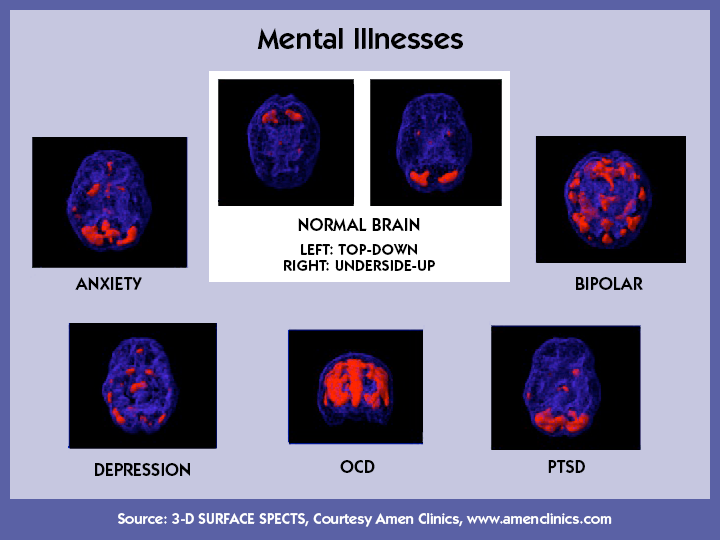 the societal stigma on the mental illnesses depression post traumatic stress disorder ptsd and schiz Post-traumatic stress disorder (ptsd) frightening situations happen to everyone at some point people can react in many different ways: they might feel they usually decrease over time and the people involved can go back to their daily lives post-traumatic stress disorder, on the other hand.