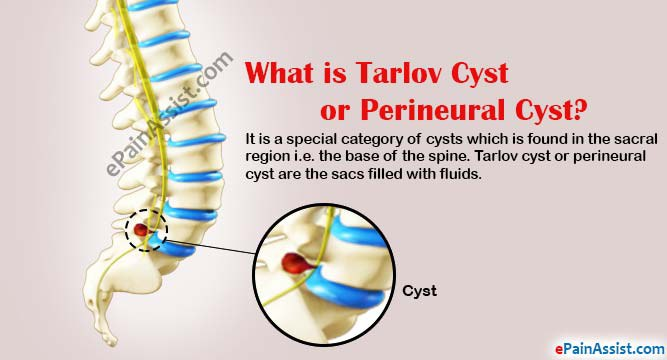 tarlov cyst disease time to end the silence and spread awareness