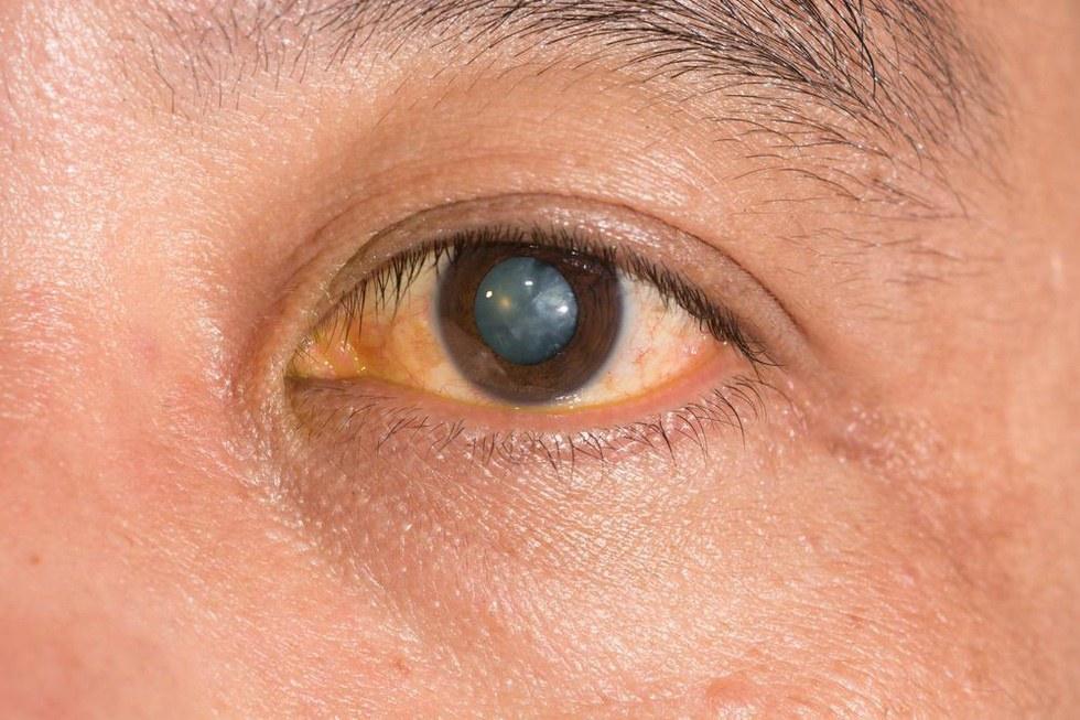 Augen augen blaue augen mit kupfer schminken augen for Smokey eyes blau