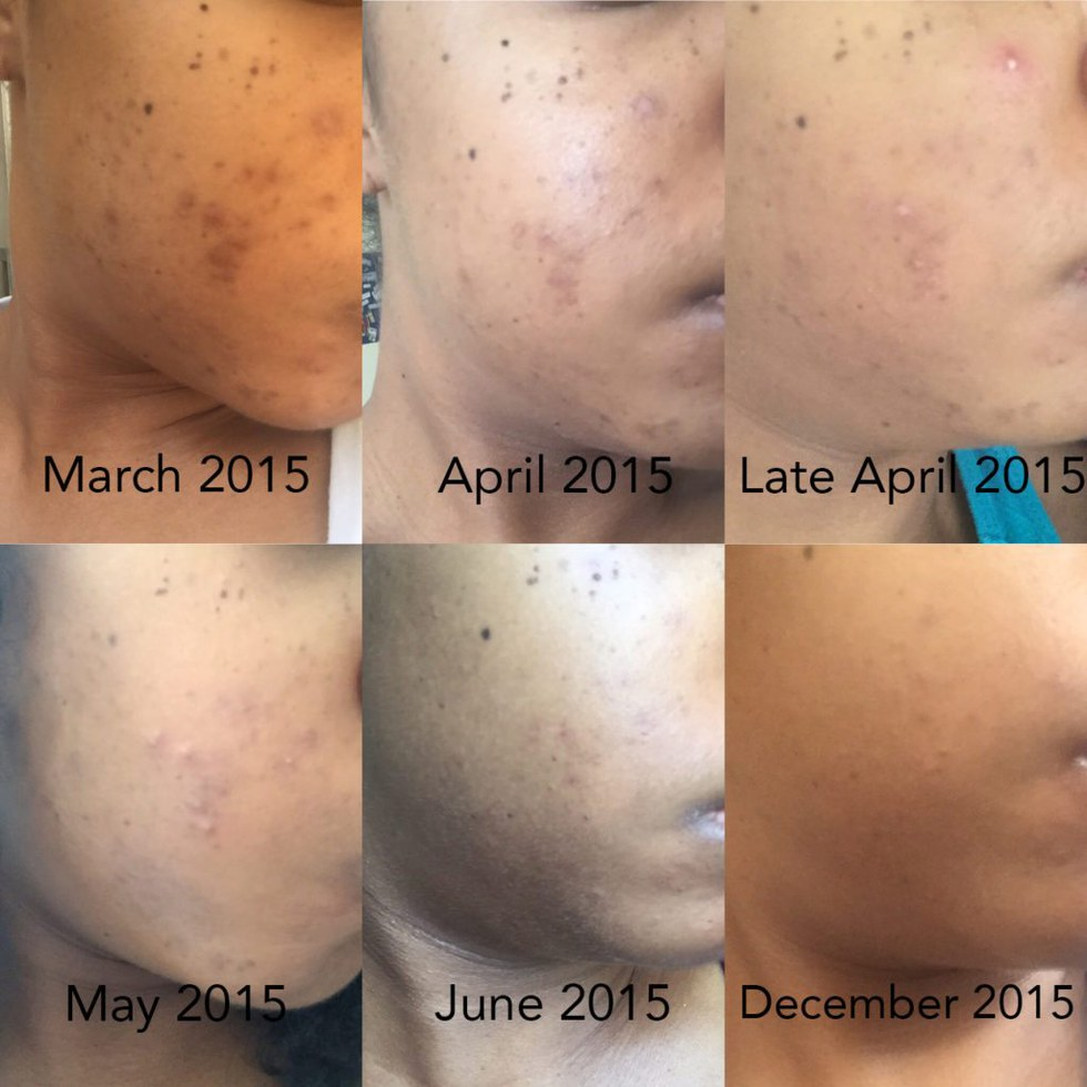 i cleared up my hyperpigmentation with this 5 step method xonecole. Black Bedroom Furniture Sets. Home Design Ideas