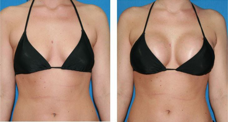 Breast augmentation over the muscle