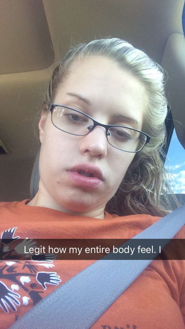 thoughts you re guaranteed to have after wisdom teeth removal