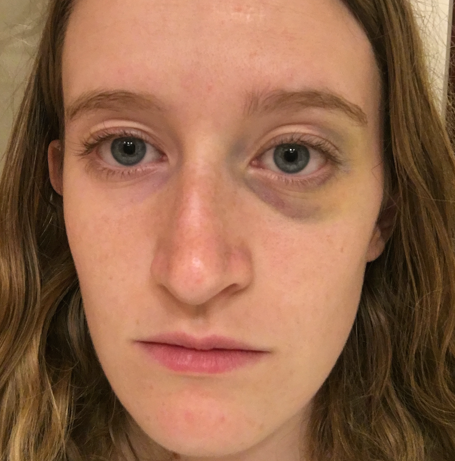 How to cover the bruises under the eyes at home: recommendations and methods 63