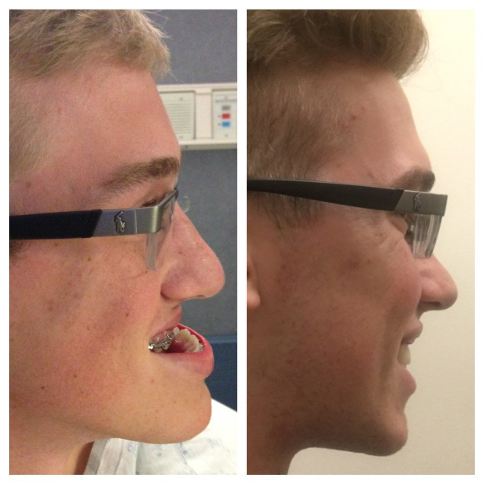 The Jaw Surgery That Changed My Life
