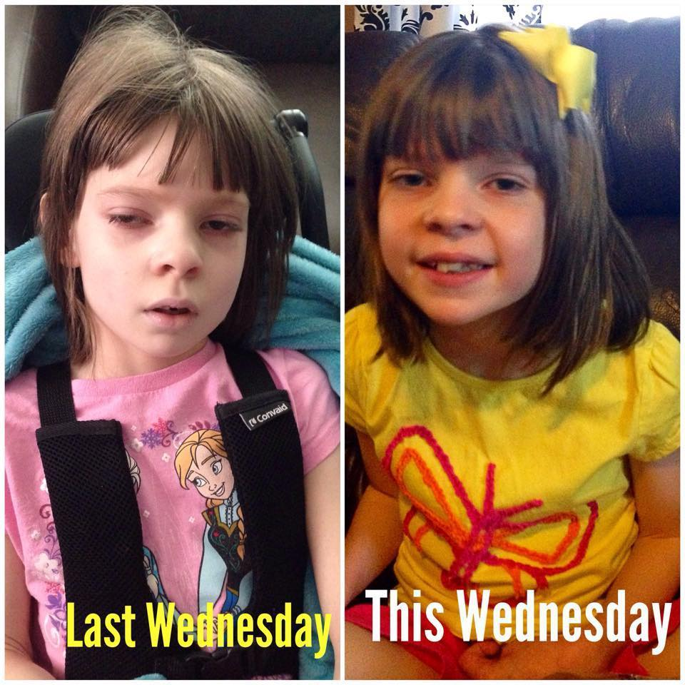 This Girl's Incredible Transformation After Seven Days Of Medical Cannabis Treatment Will Change Everything You Thought You Knew About Marijuana