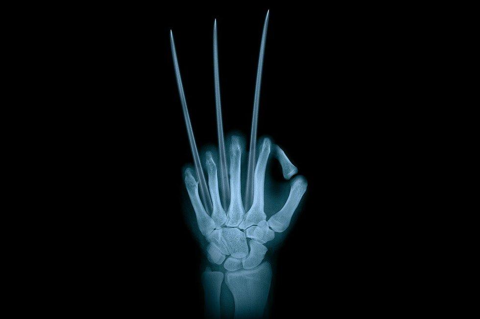 1 Unbreakable Bones