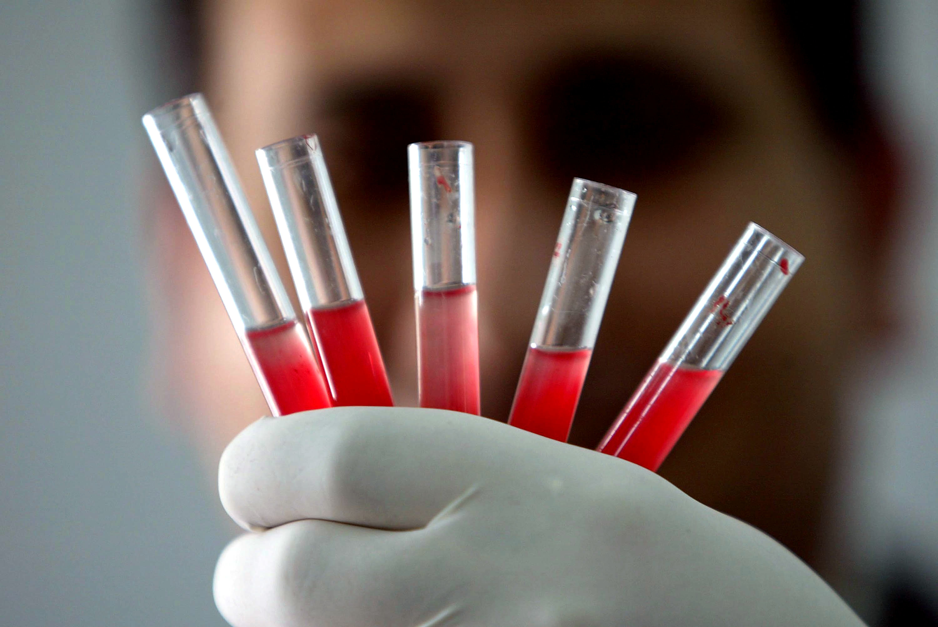 Golden blood — So rare that only 43 people worldwide have it