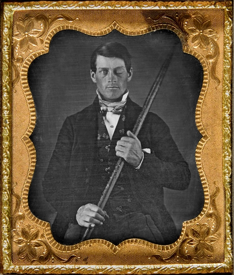 The continued relevance of Phineas Gage