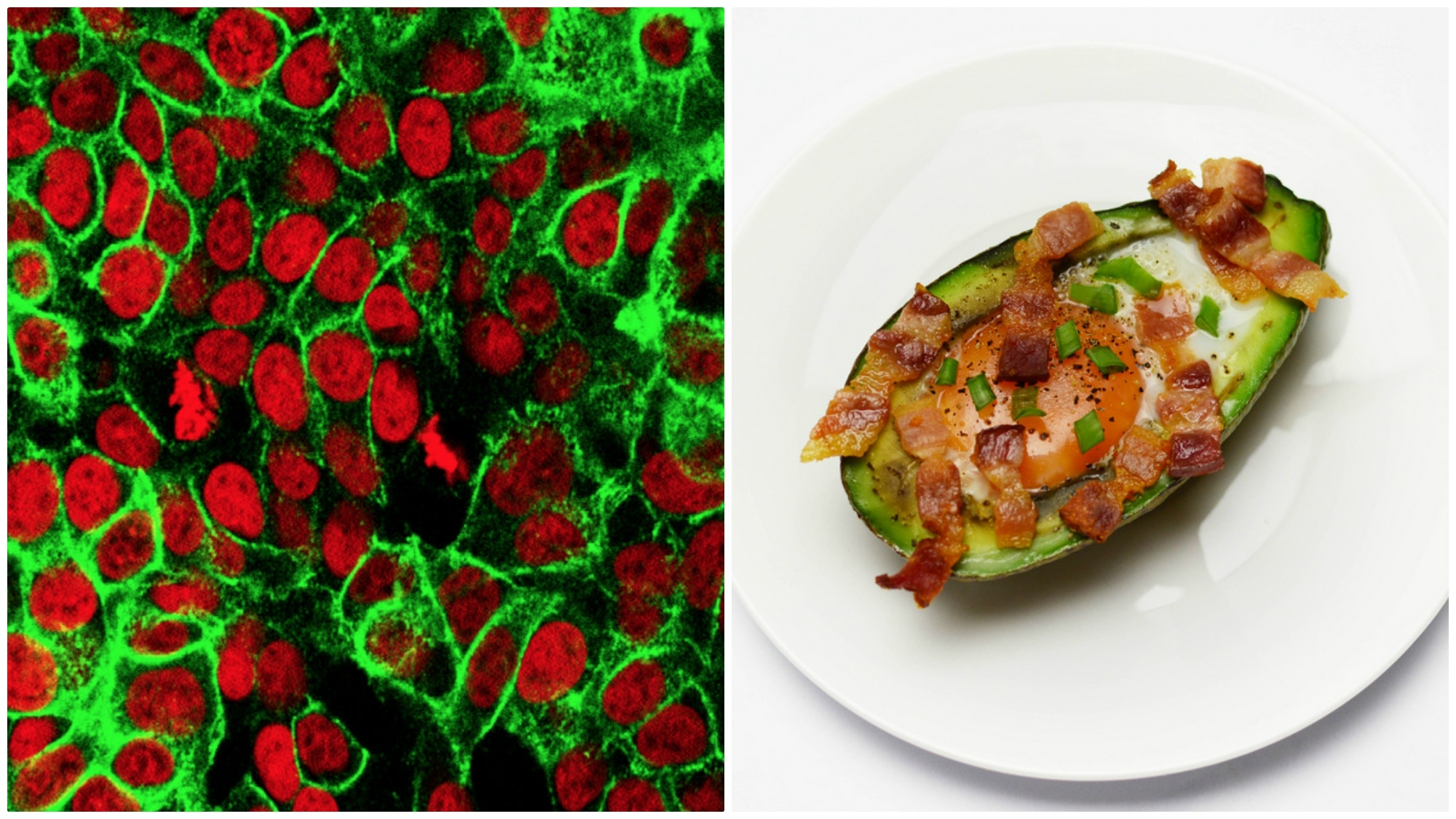 The keto diet and cancer: Why some doctors believe ketosis 'starves' tumors