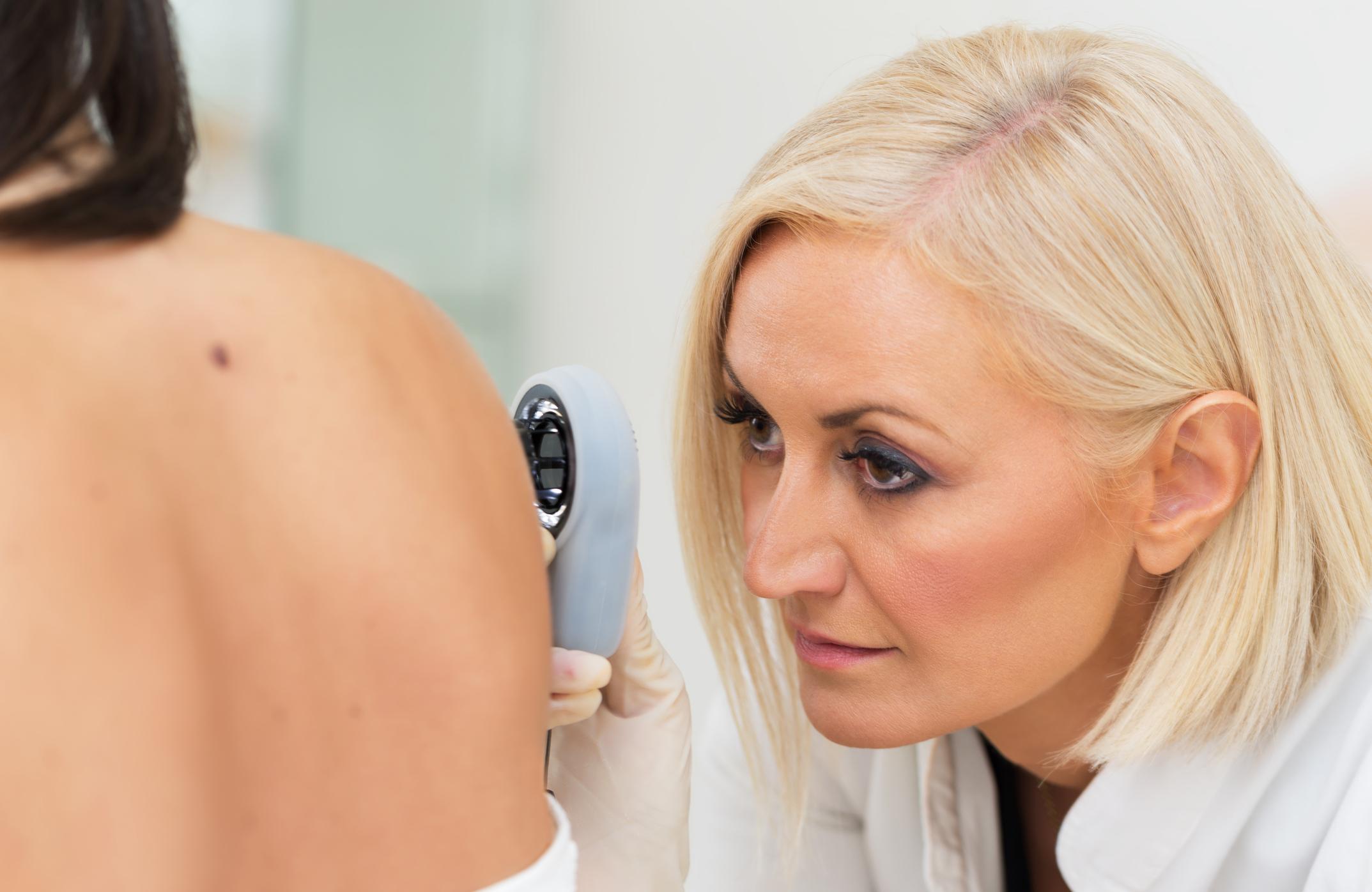 Skin Tags An External Indicator Of Your Internal Health Healthywomen