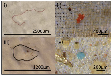 Scientists find microplastics in 100% of beached dolphins, whales, and seals tested