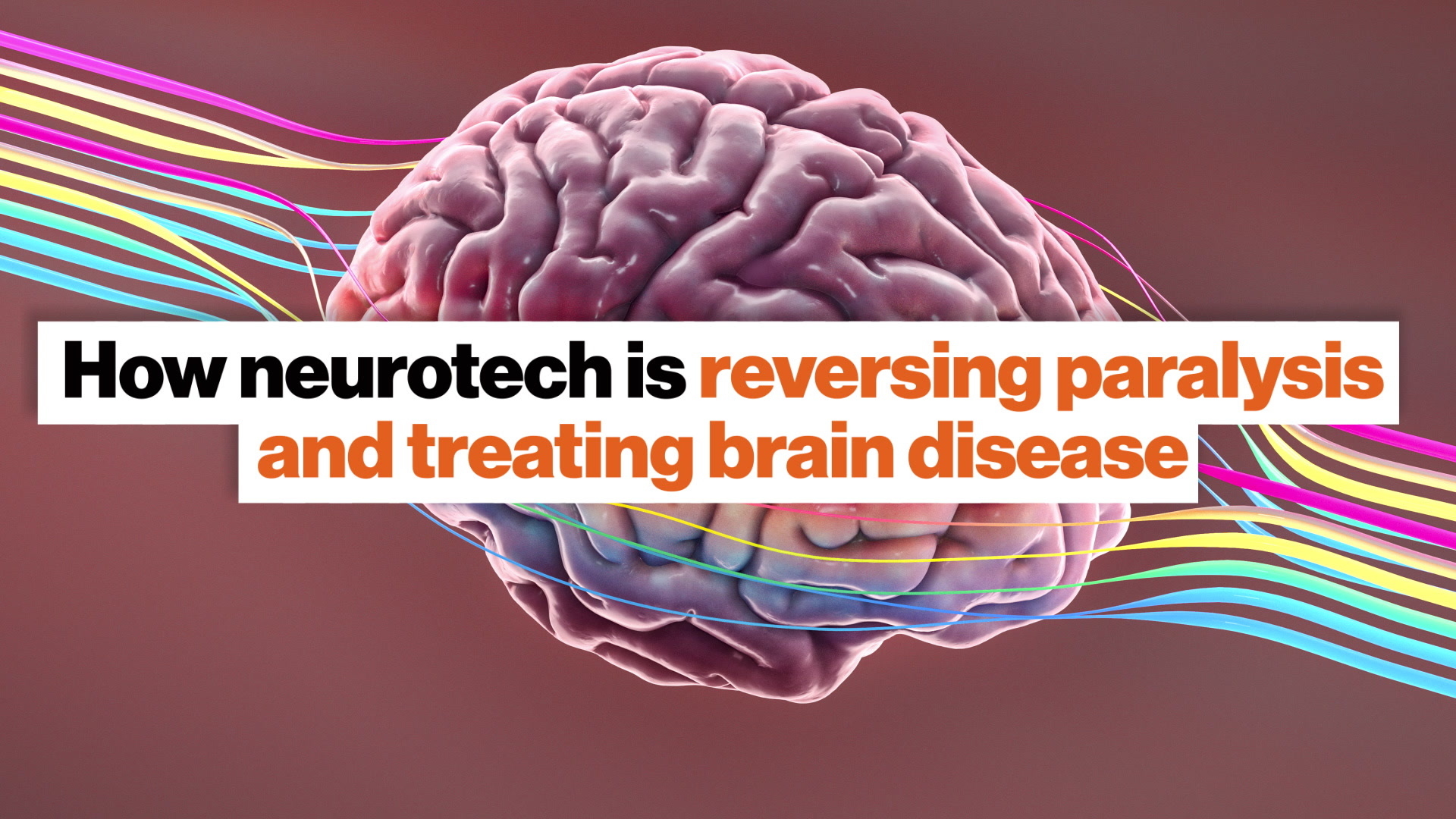 Neuroprosthetics and deep brain stimulation: Two big neuroscience breakthroughs