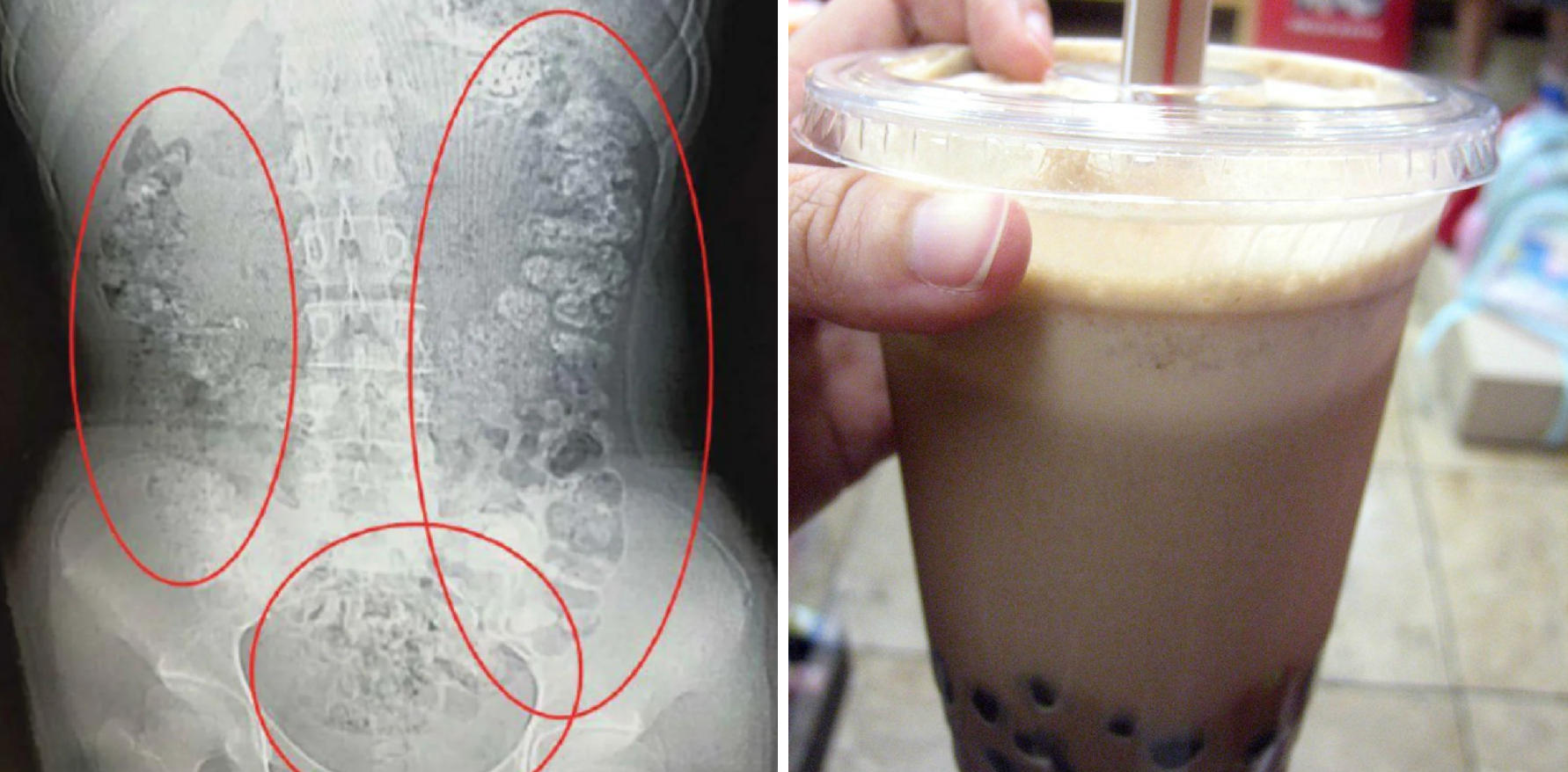 A 14-year-old went to the hospital after 100 bubble tea pearls were