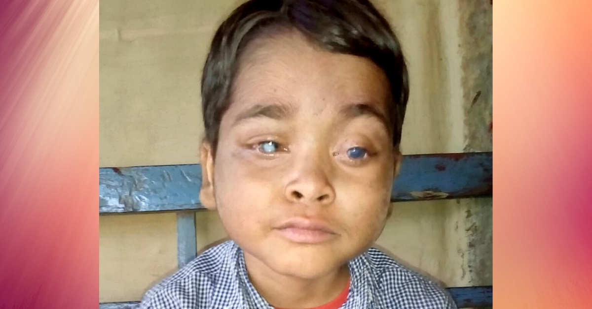 Boy Who Went Blind After His Leukemia Caused His Eyes To Pop Out Gets His Vision Restored Thanks To Kindhearted Stranger