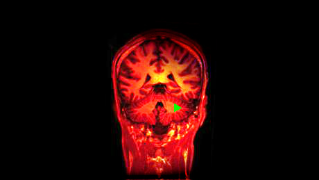 Tiny area of brain may be  engine of consciousness , scientists suggest