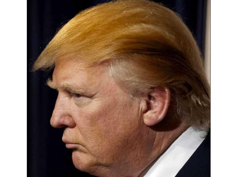 Donald Trump Hair Mystery—Combover, Toupee,