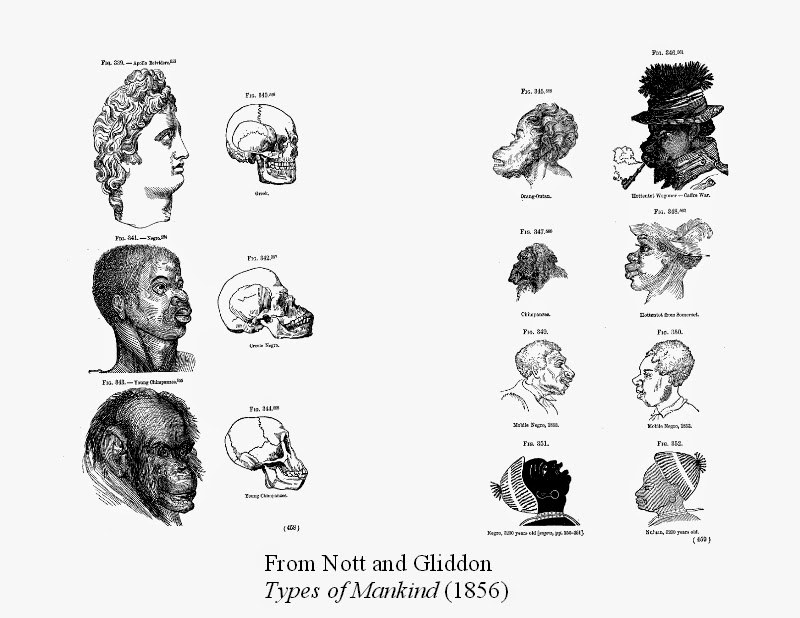 In The Early 1800s, Racist Whites Used Head Shape To Advocate For ...