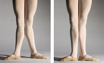 how to stand to hide knock knees